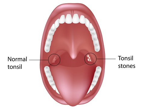 What are Tonsil Stones?