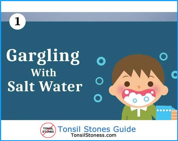 Tonsil Stones Gargling Salt Water