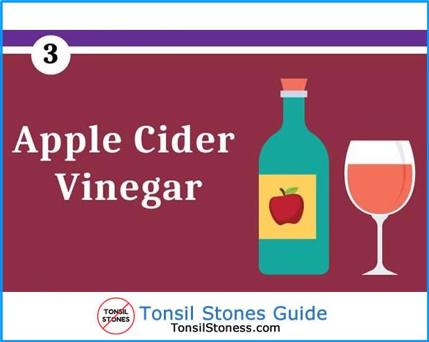 Remove Tonsil Stones Apple Cider Vinegar