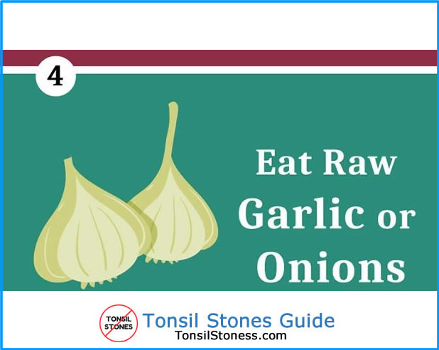 Eat Garlic / Onions for Removing Tonsil Stones