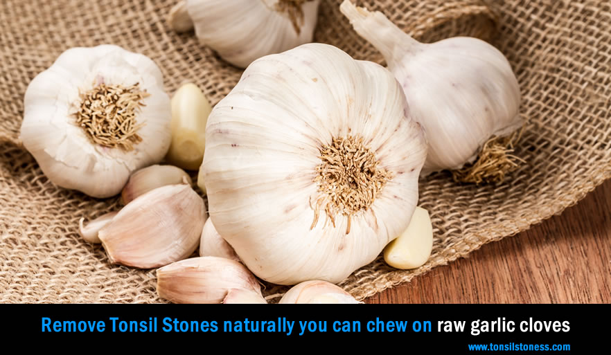 Remove Tonsil Stones with Raw Garlic Cloves