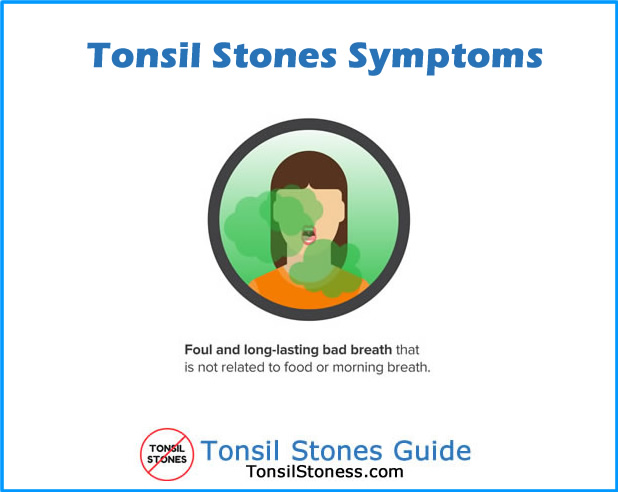 Tonsil Stones Symptoms Bad Breath