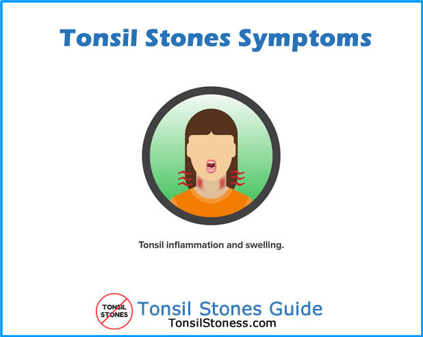 Tonsil Stones Symptoms Inflammation and swelling