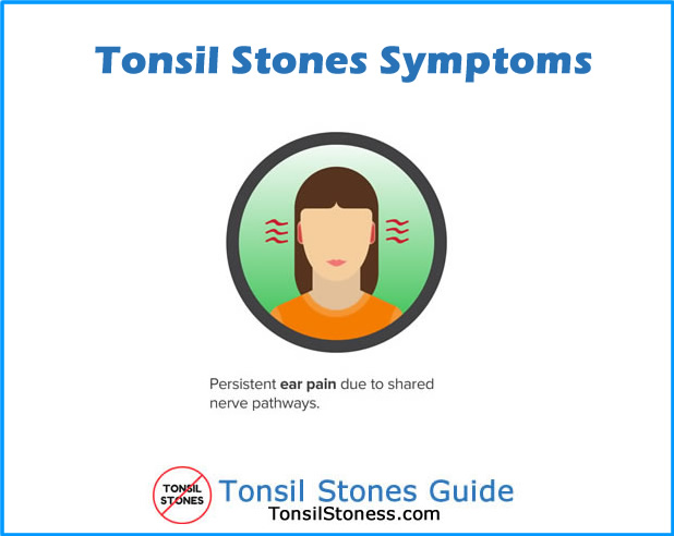 Tonsil Stones Symptoms Ear Pain
