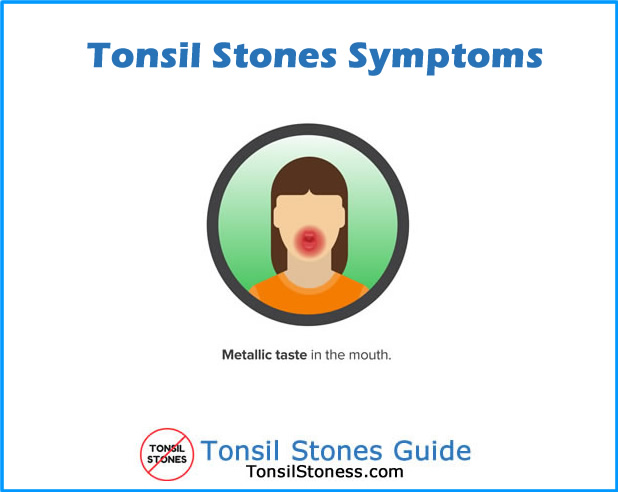 Tonsil Stones Symptoms Metallic Taste in Mouth