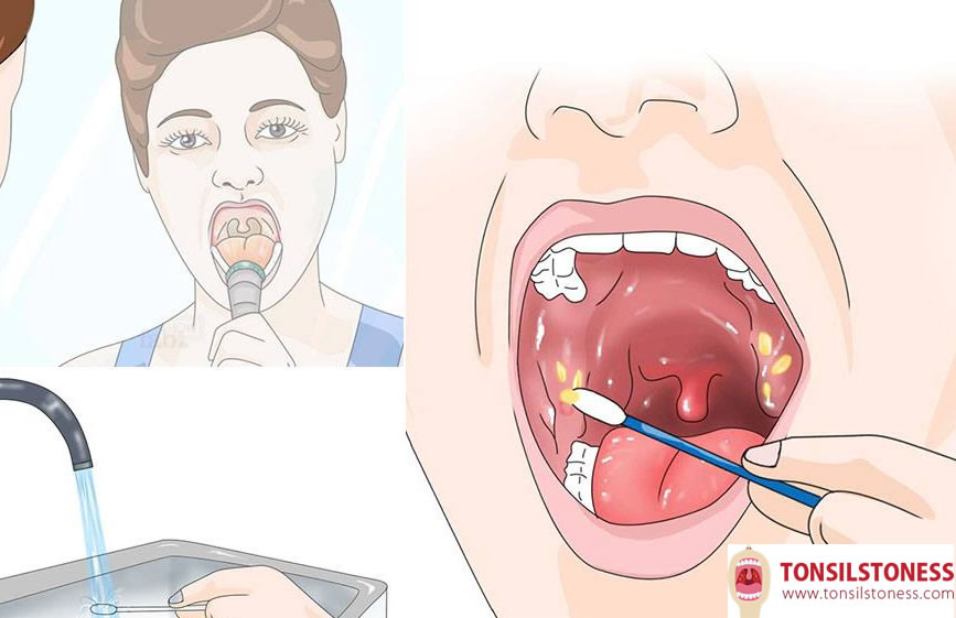 remove tonsil stones by cotton swab