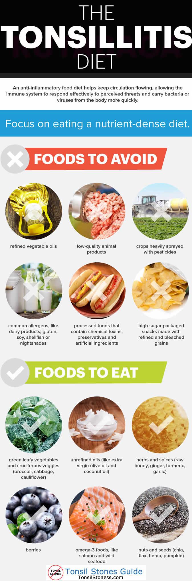 tonsil stones diet